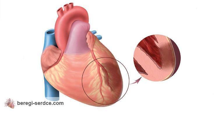 Инфаркт миокарда проявляется внезапной жгучей болью в сердце
