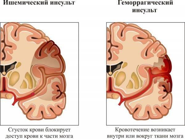 профилактика инфаркта и инсульта у женщин