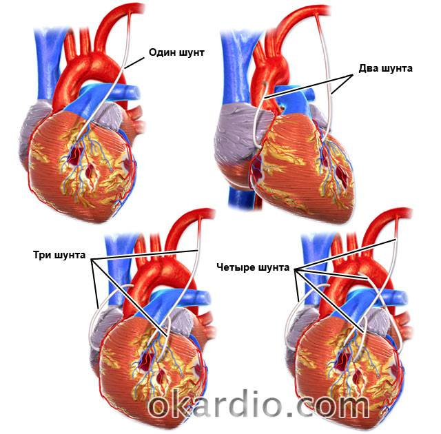 виды аортокоронарного шунтирования сердца