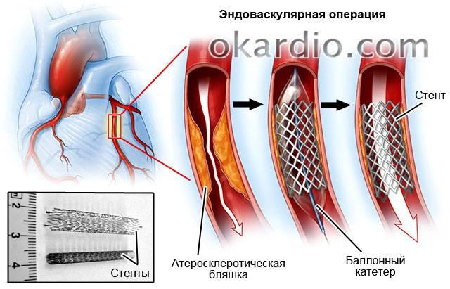 эндоваскулярная операция