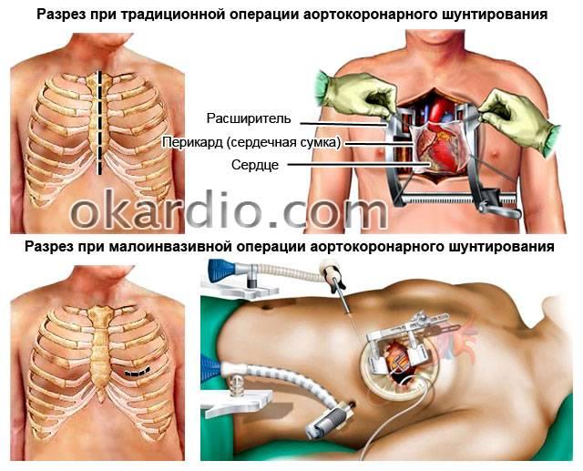 места разрезов на операции по аортокоронарному шунтированию