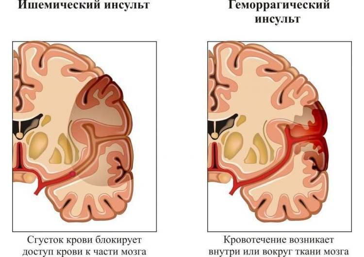 Отличия ишемического от геморрагического вида заболевания
