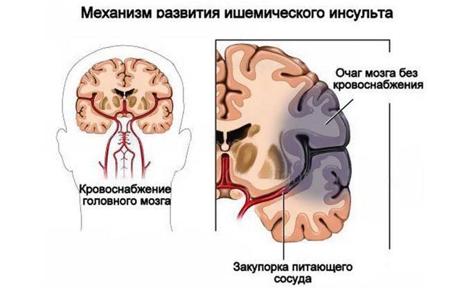 картинка мозга