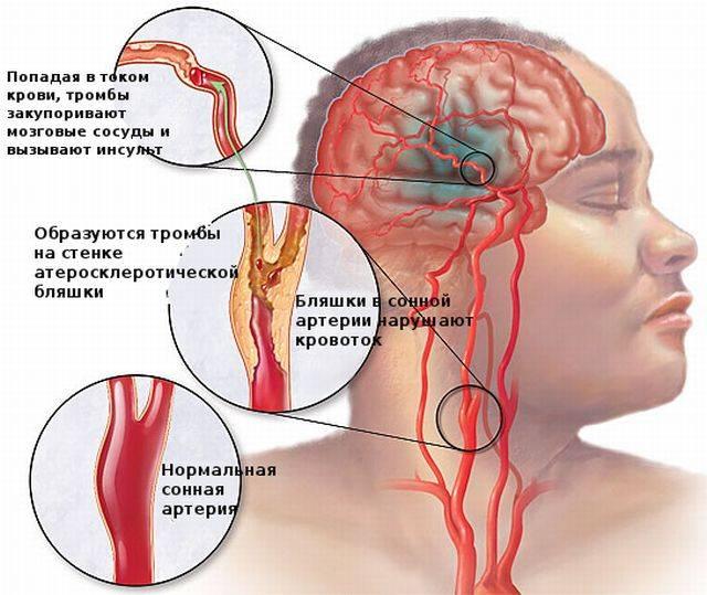 от чего может быть инфаркт мозга