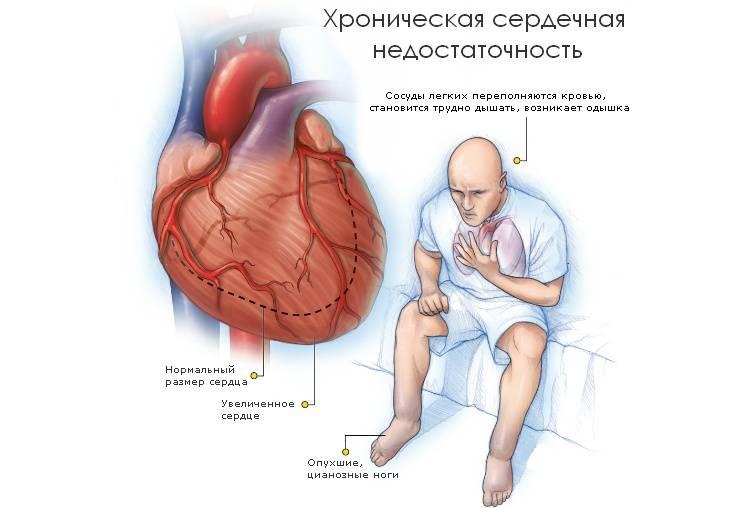 одышка при сердечной недостаточности народное лечение