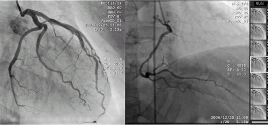 лекарства после шунтирования сосудов сердца