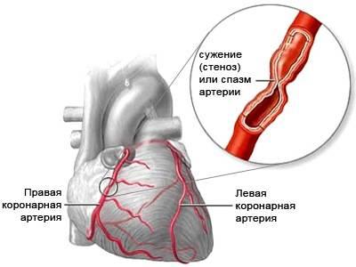 этиология стенокардии