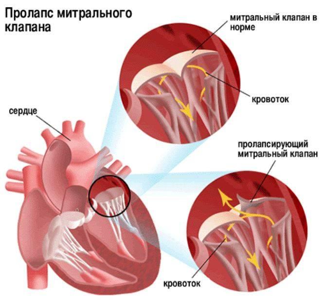 клапан левого желудочка сердца