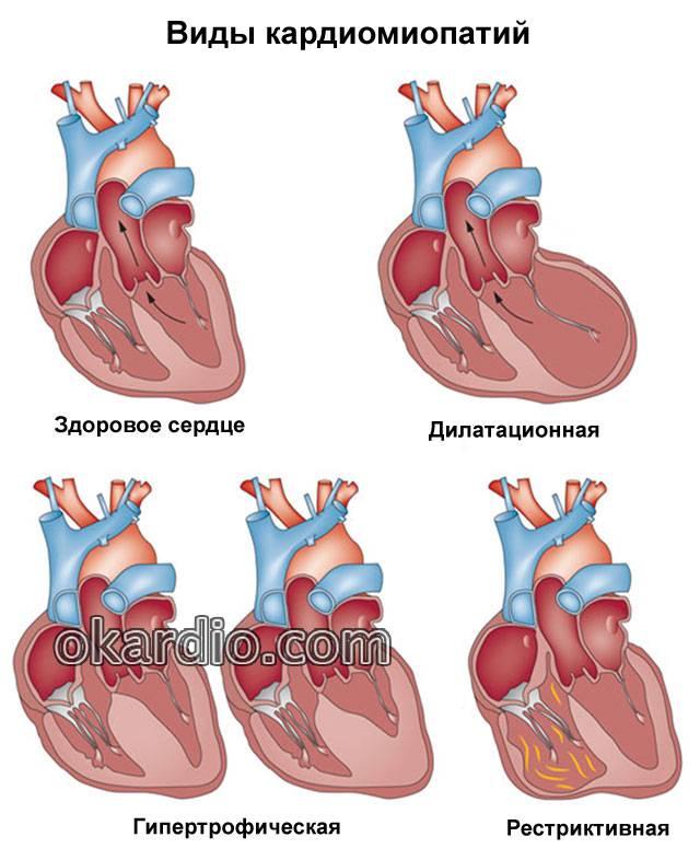 виды кардиомиопатий