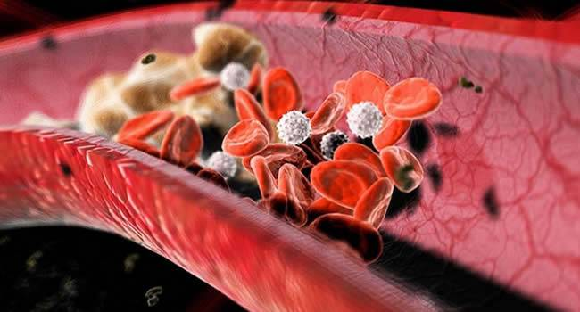 Препарат снижающий холестерин в крови