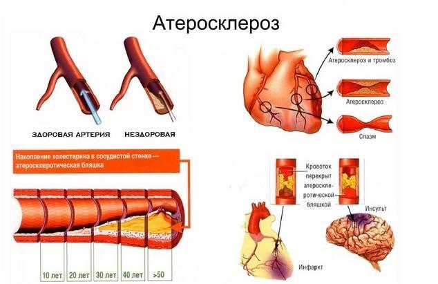 последствия инфаркта правого полушария