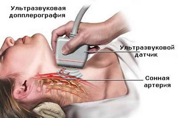 Ультразвуковая допплерография