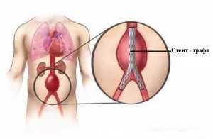 Аневризма аорты брюшной разрыв