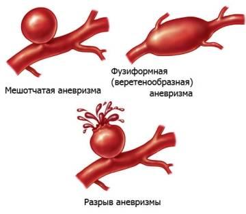 Симптоматика разрыва аневризмы