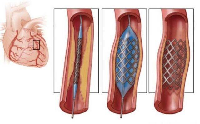 Атеросклероз считается главным виновником возникновения инфаркта