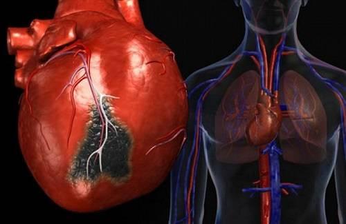 Как жить после инфаркта и стентирования