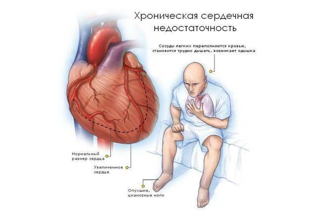 Сердечная недостаточность бывает острой и хронической