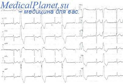 Блокада правого желудочка сердца что это такое — Сердце