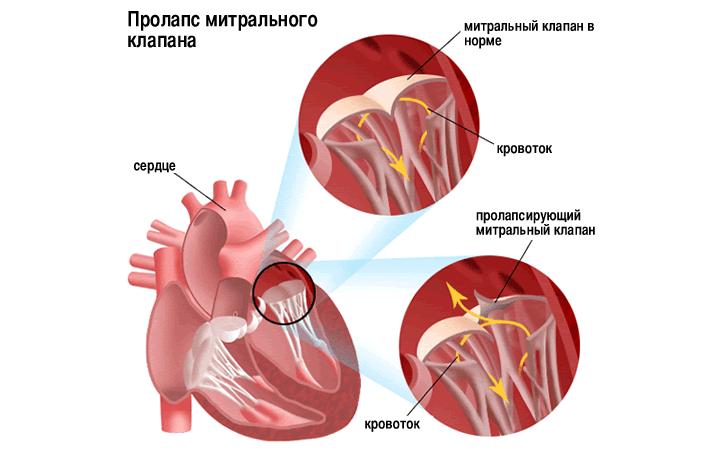 уплотнение створки клапана сердца