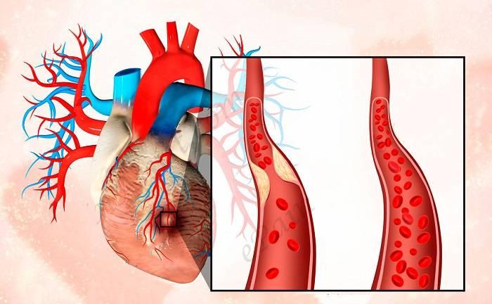 Что такое инфаркт сердца и от чего