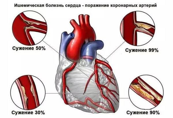 лечение после инфаркта сердца