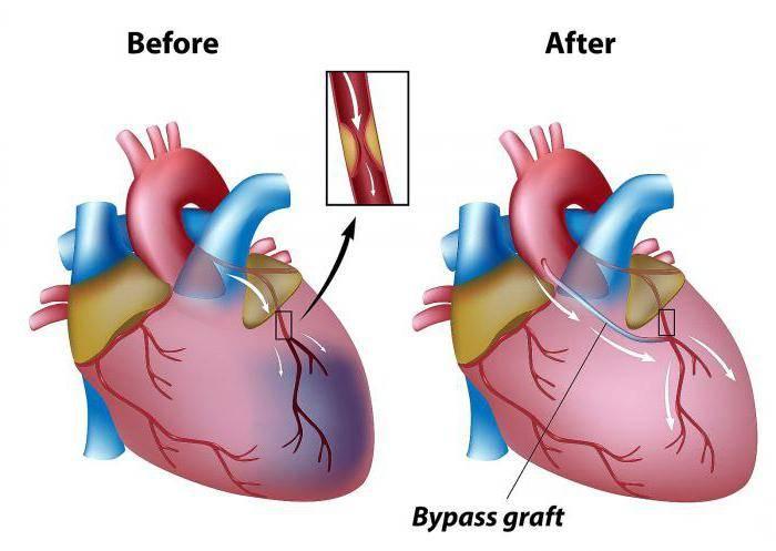 сколько живут после шунтирования сосудов сердца отзывы