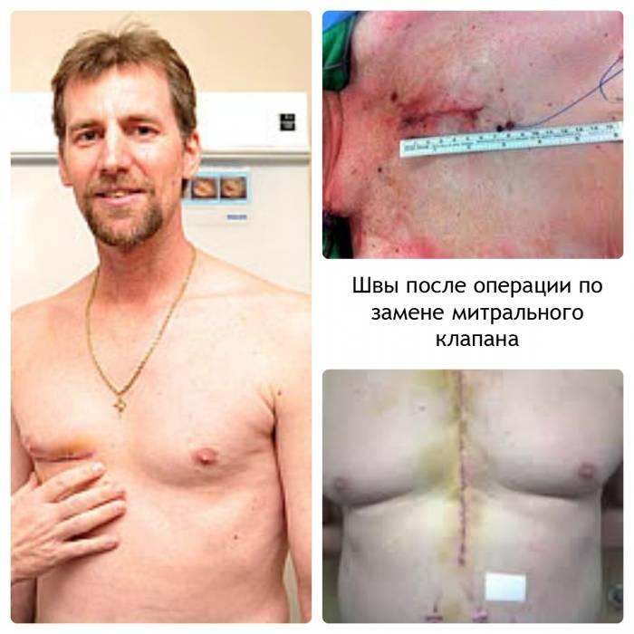 Швы после операции на сердце