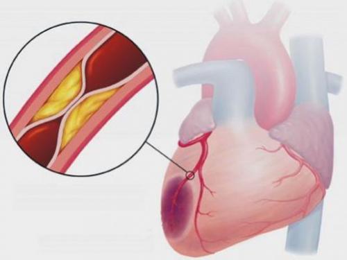 Ишемия передней стенки сердца что это — Сердце