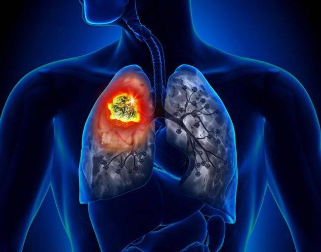 Кашель при сердечной недостаточности - довольно серьезное заболевание, которое часто путают с простудой или аллергией