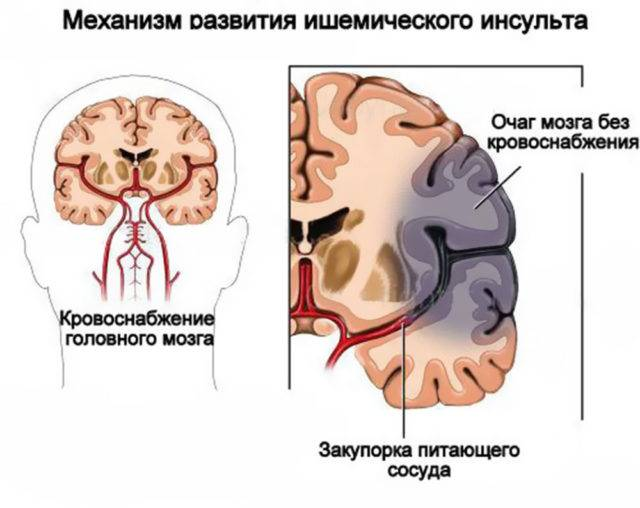 Клиническая картина хронической ишемии головного мозга складывается из головных болей, головокружений, снижением когнитивных функций