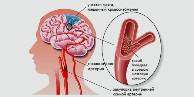 В последнее время большую роль в развитии хронической ишемии головного мозга отводят венозной патологии, не только интра-, но и экстракраниальной
