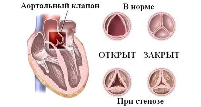 Сравнение здорового и больного артериального клапана