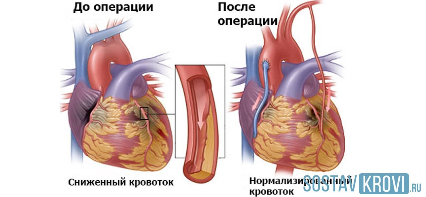 операция на сердце шунтирование осложнения