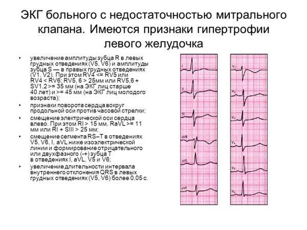 ЭКГ больного с недостаточностью митрального клапана