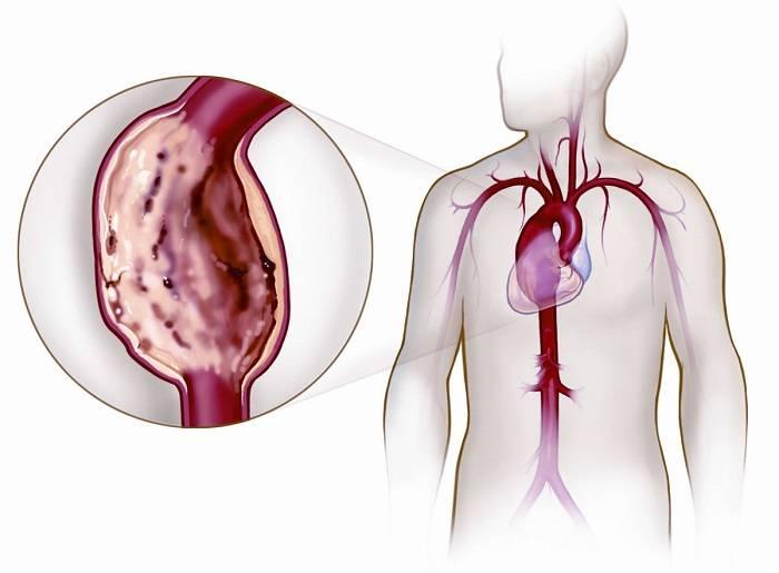 Разрыв аневризмы грудной части аорты