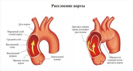 расслоение в артериях