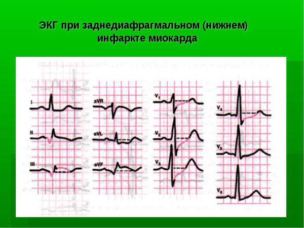 инфаркт миокарда крупноочаговый нижний