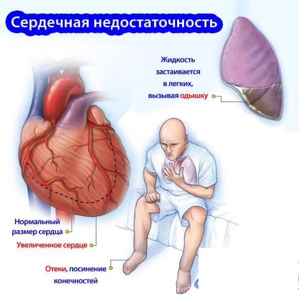 Симптомы при сердечной недостаточности
