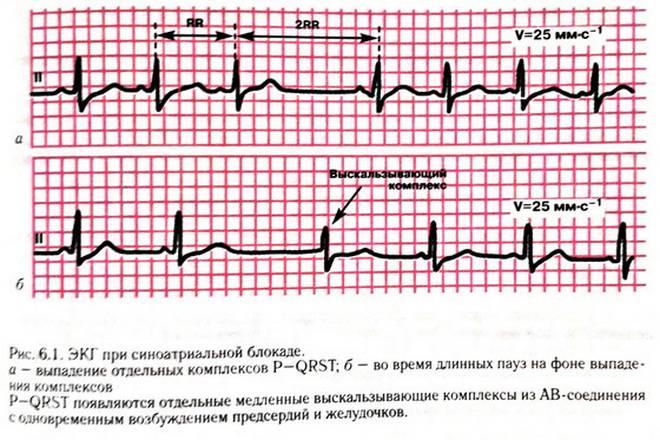 Нарушение проводимости сердца блокада 1 степени что это такое простыми словами симптомы причины лечение и экг