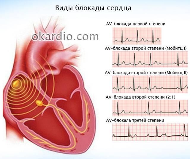 виды блокады сердца