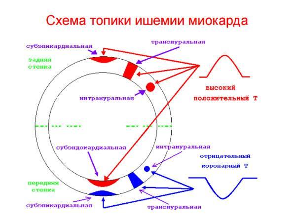 Схема топики ишемии миокарда
