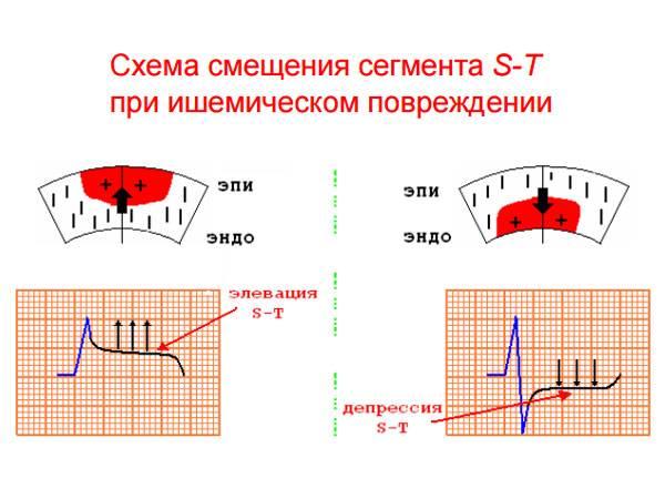 Схема смещения сегмента S-T