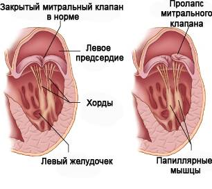 Лечение уплотнений на клапанах сердца