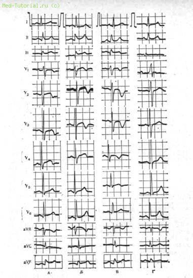 Изменения на экг при мелкоочаговом инфаркте