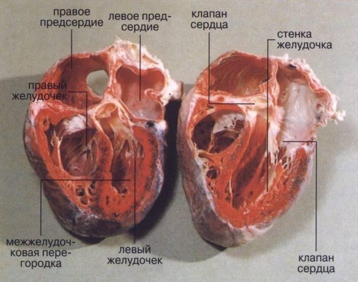 Причины диффузных изменений миокарда