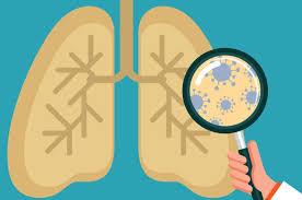 Туберкулез: Симптомы и курс