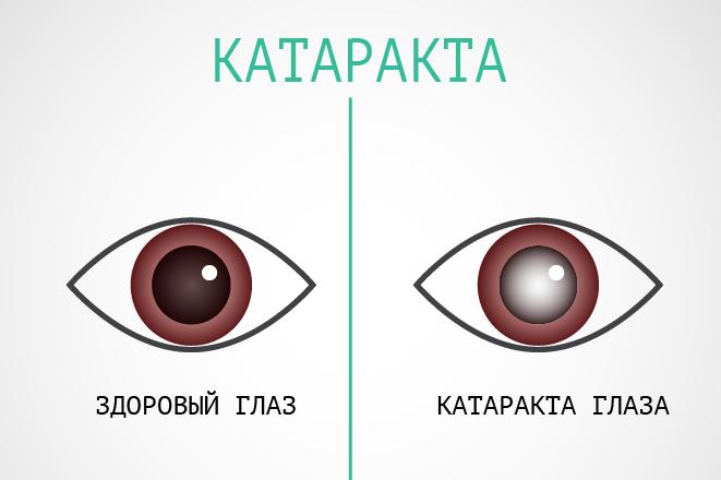 Катаракта: причины возникновения, симптомы и лечение