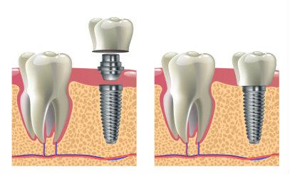 Традиционная и лазерная имплантации зубов: в чем разница