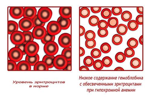 Что такое анемия и как выглядит ее лечение?