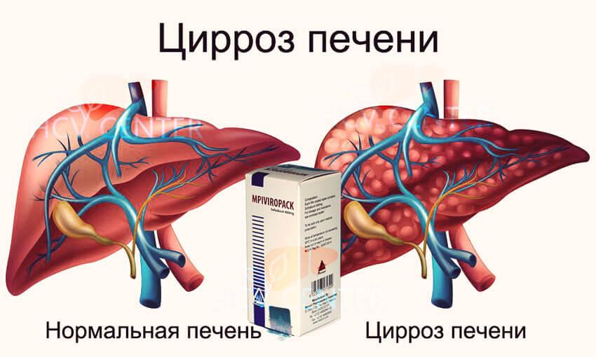 Лечение гепатита сегодня